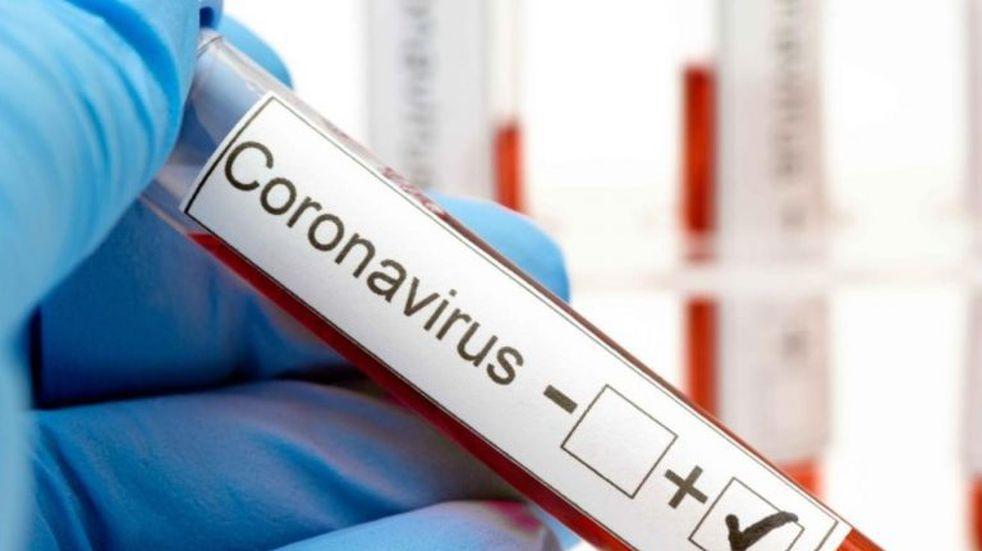 Coronavirus: se registraron 373 nuevos casos y 2 fallecimientos en Bahía