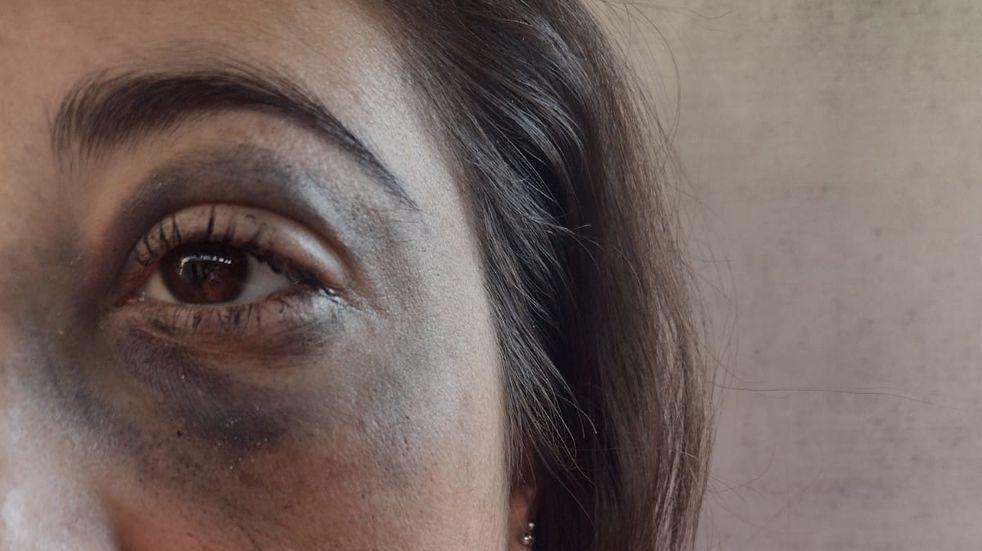 Yésica Brusa denunció que fue fuertemente golpeada por un efectivo policial.