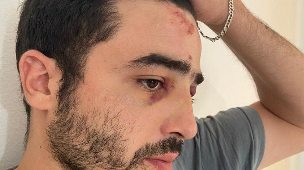 La Municipalidad de Córdoba suspendió a tres empleados por agresión