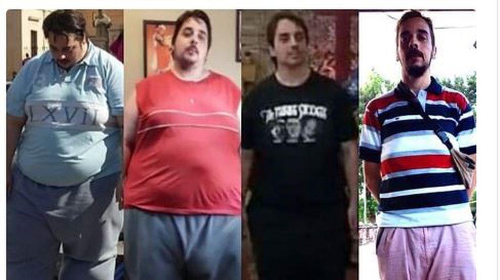 Charlas abiertas en el Madariaga para personas con obesidad, desde mañana