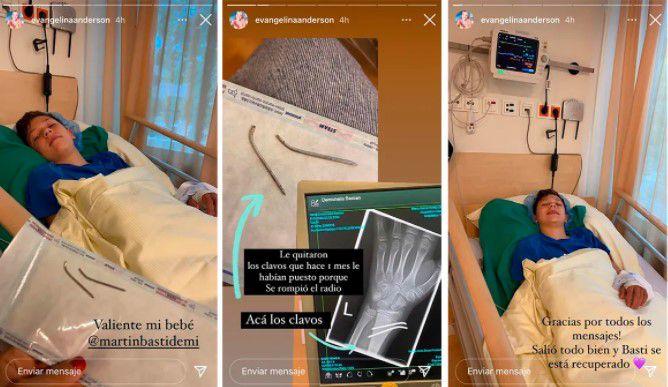 Las historias que publicó la modelo por la operación de su hijo.