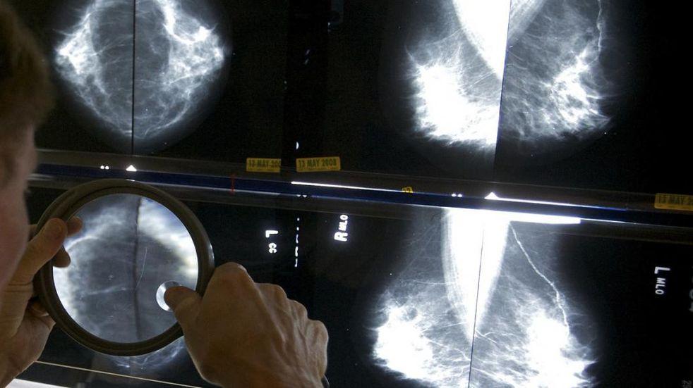 Mamografias en Cura Brochero