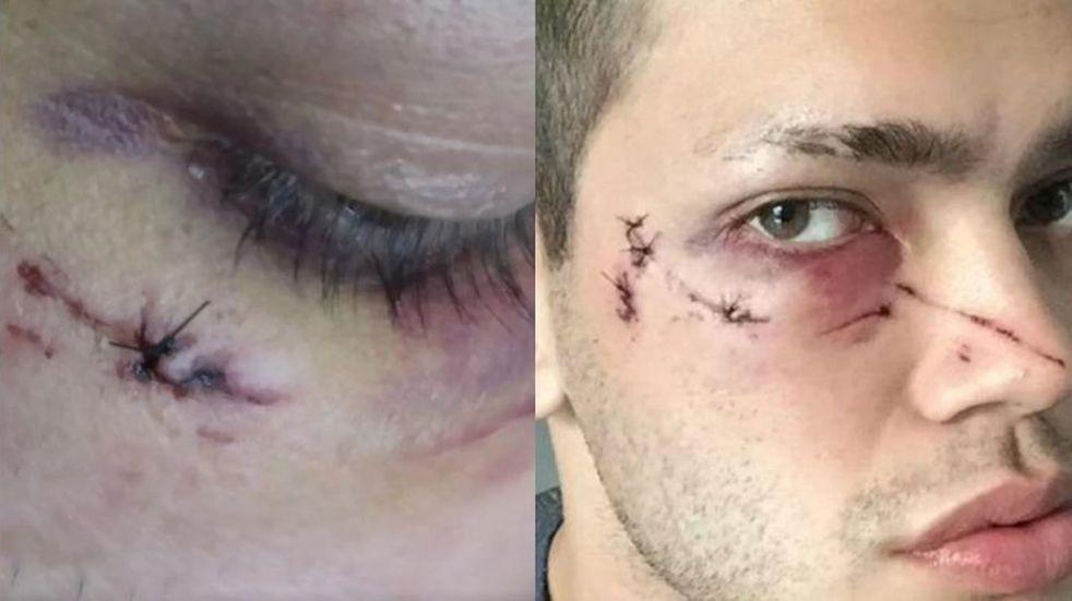 Ataque homofóbico en Palermo: un hombre golpeó brutalmente a dos jóvenes mientras desayunaban