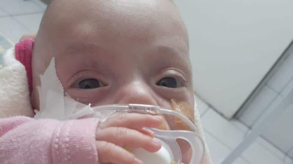 """""""Todos por Guadalupe"""", la campaña que busca ayudar a una bebé con displasia broncopulmonar"""